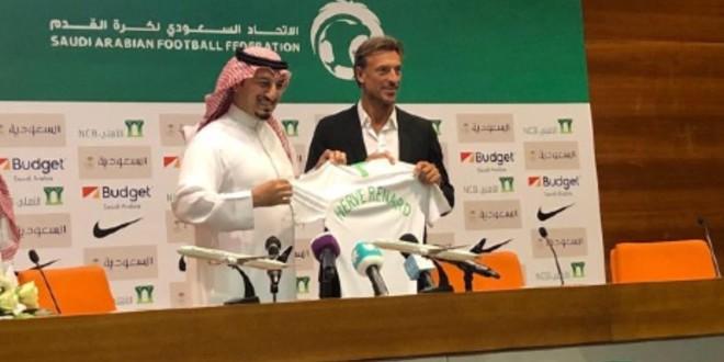 صورة رونار يتناقض مع تصريحاته السابقة ويمدح الدوري السعودي