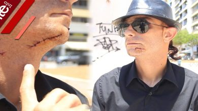صورة إصابات وجروح.. لاعب سابق في الفتح الرياضي يتعرض لاعتداء بنية القتل- فيديو